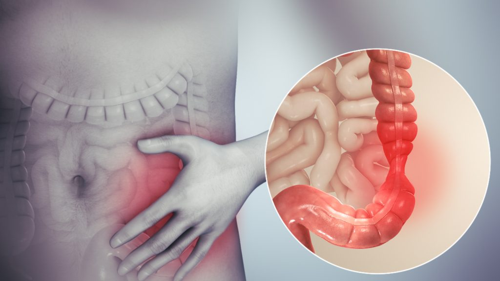 irritable bowel syndrome (IBS), a disorder that causes significant abdominal pain is up to four times more common in women than in men in the US.